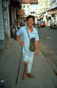 Maschio indiano affetto da polio alla gamba destra.